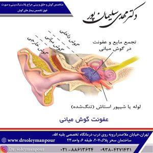عفونت گوش میانی