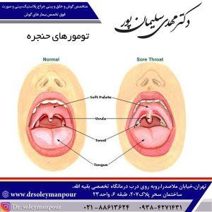 تومورهای حنجره