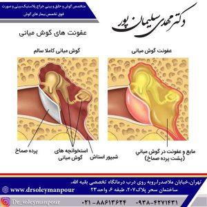 عفونت های گوش میانی